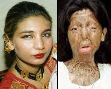 [Image: fakhra-yunus-before-and-after.jpg?w=584]